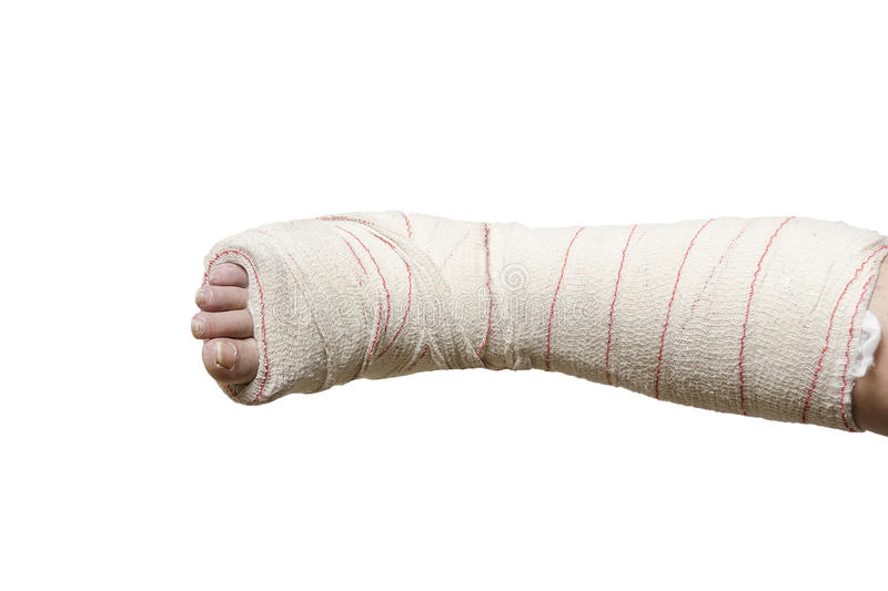 Woman with her broken leg. Arm in a cast. stock photos