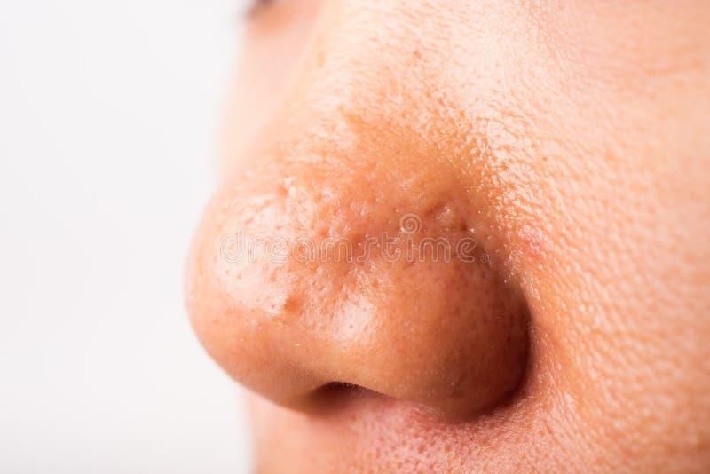 Papillomavirus nez - Înțelesul