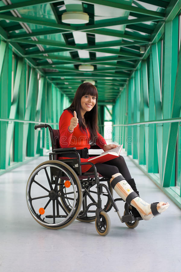 Woman with leg cast stock photo