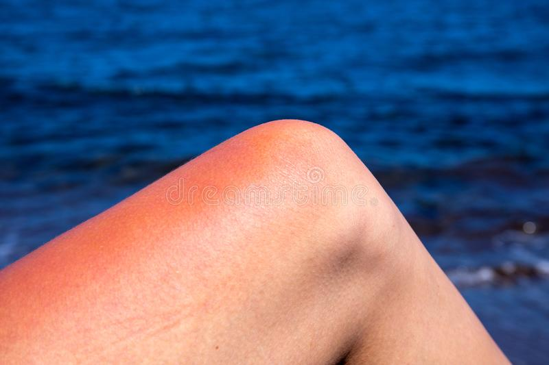 Woman leg with red sunburn skin on blue sea background. Sun burned skin redness and irritation royalty free stock photo