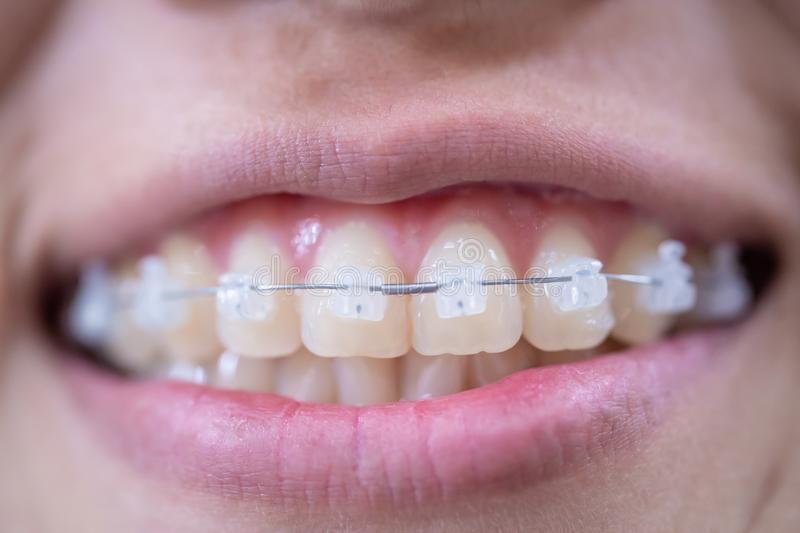 Woman mouth smiling with white braces and healthy teeth for beaty and healthy teeth concept. Young Woman mouth smiling with white braces and healthy teeth for royalty free stock image