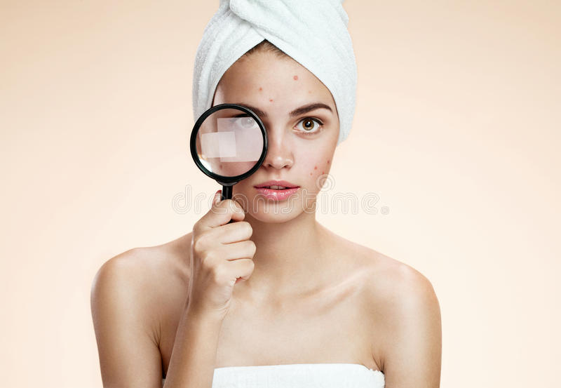 Woman with a pimply face holding magnifying glass. Woman skin care concept stock photos