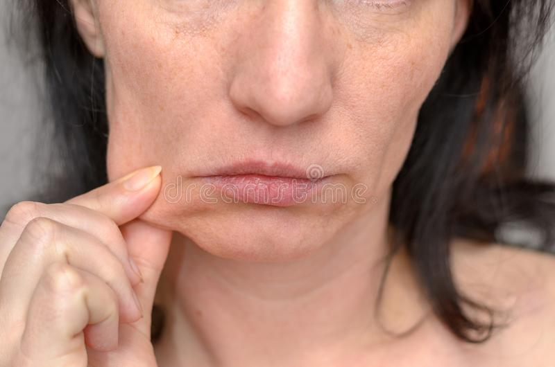 Woman pinching the skin of her cheek. With her fingers pulling it to the side in a close up cropped view of her lower face royalty free stock image