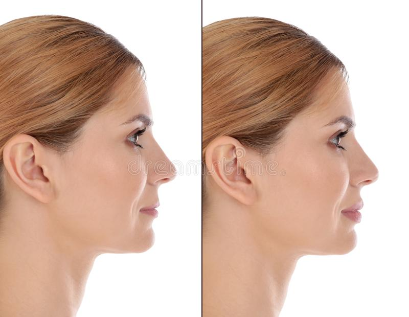 Woman before and after plastic surgery on background royalty free stock photo