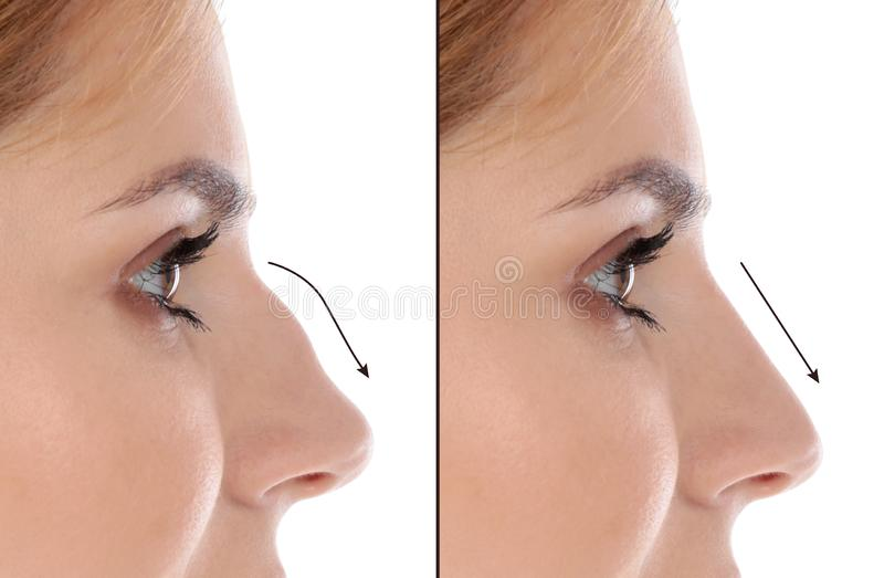 Woman before and after plastic surgery on background royalty free stock images
