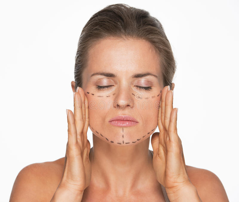 Woman with plastic surgery marks on face stock photo