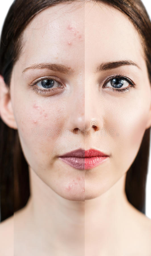 Woman with problem skin. royalty free stock photography