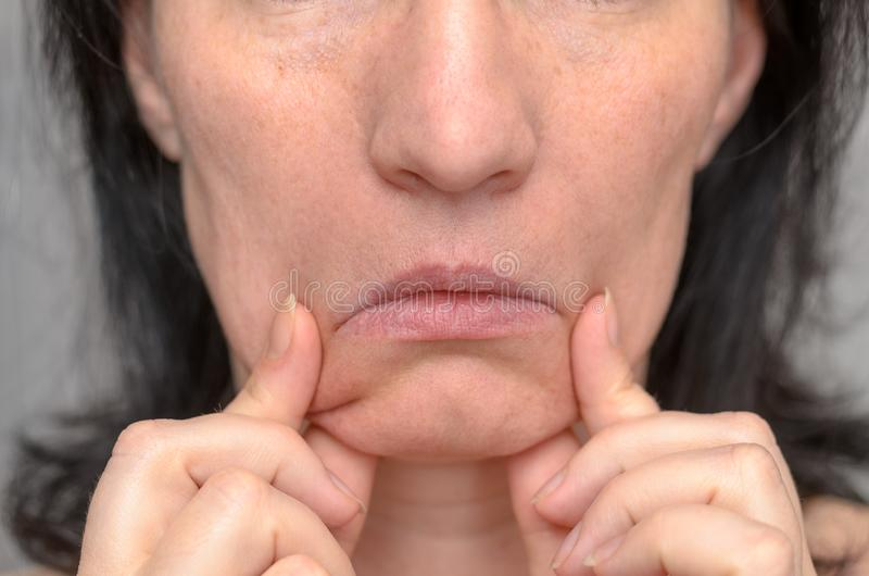 Woman pulling down the sides of her mouth stock photos