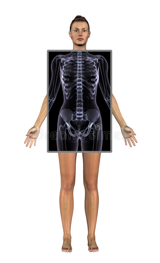 Woman with X-ray - includes clipping path stock illustration