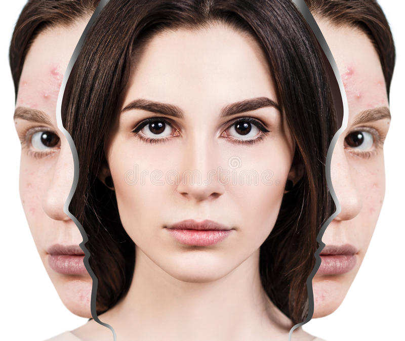 Woman rebirth from bad acne skin to perfect. Young woman rebirth from bad acne skin to perfect. Before and after treatment royalty free stock photo