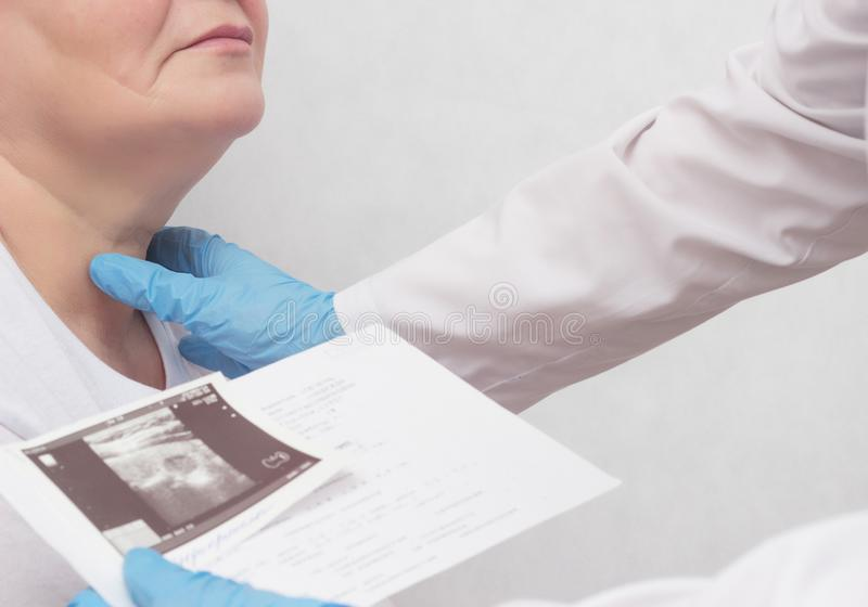 A woman is on reception at the endocrinologist, the doctor looks at the results of an ultrasound scan of the thyroid gland, close- royalty free stock photography