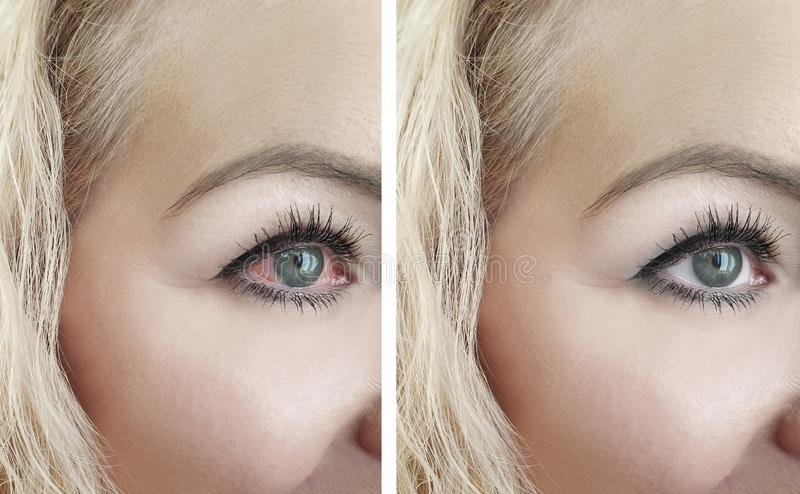 Woman red eye before and afterthreat vision problem procedures ophthalmology stock images