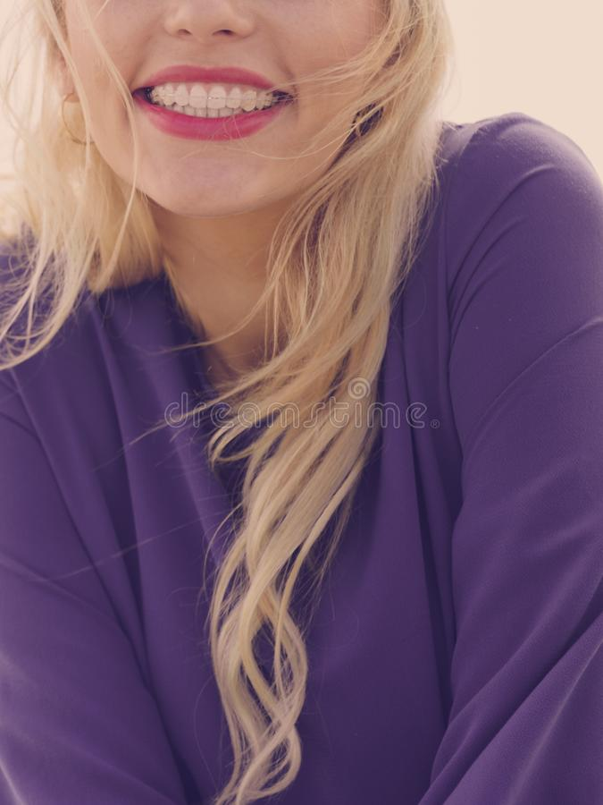 Woman with red lips having braces royalty free stock photography