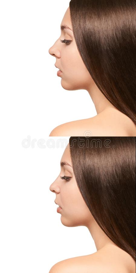Woman rhinoplasty surgery. Nose aesthetic plastic. Face beauty woman correction.  royalty free stock photo