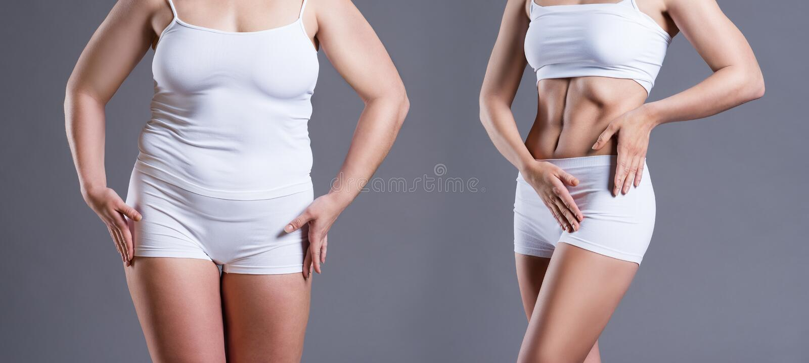 Woman`s body before and after weight loss on gray background. Plastic surgery concept stock image