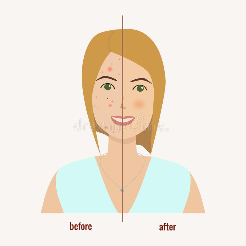 Woman`s face with skin problems before and after skin treatment. royalty free illustration