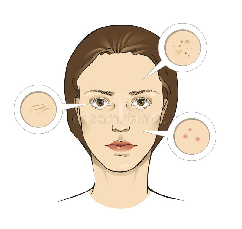 Woman`s face skin problems vector illustration with close ups - wrinkles, freckles, pimples vector illustration