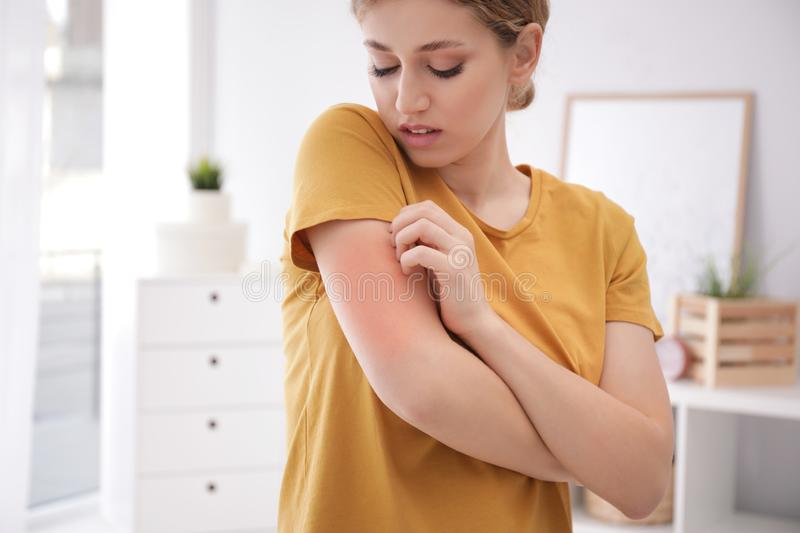 Woman scratching arm indoors. Allergy symptoms. Woman scratching arm indoors, space for text. Allergy symptoms stock images