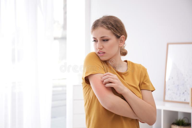 Woman scratching arm indoors. Allergy symptoms. Woman scratching arm indoors, space for text. Allergy symptoms royalty free stock photo
