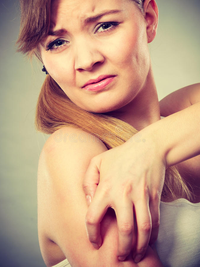 Woman scratching her itchy arm with allergy rash. Health problem, skin diseases. Young woman scratching her itchy arm with allergy rash stock photo