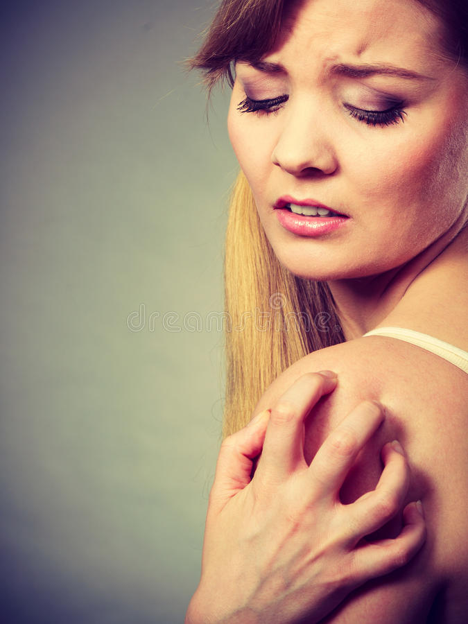 Woman scratching her itchy arm with allergy rash. Health problem, skin diseases. Young woman scratching her itchy arm with allergy rash stock image