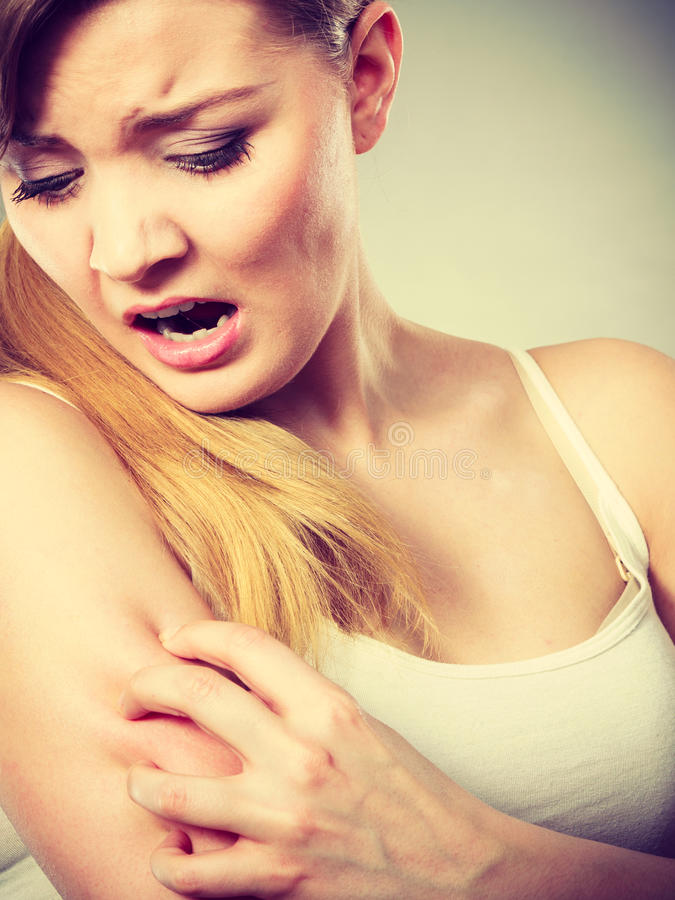 Woman scratching her itchy arm with allergy rash. Health problem, skin diseases. Young woman scratching her itchy arm with allergy rash stock images