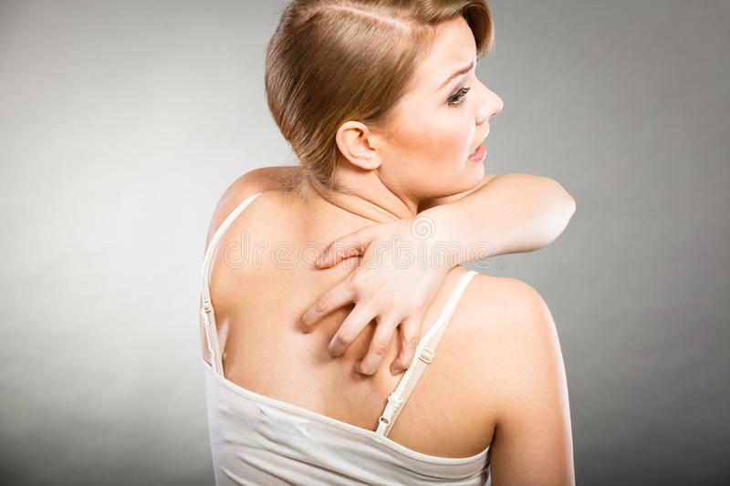 Woman scratching her itchy back with allergy rash. Health problem, skin diseases. Young woman scratching her itchy back with allergy rash stock image