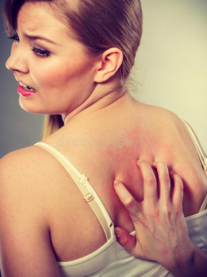 Woman scratching her itchy back with allergy rash. Health problem, skin diseases. Young woman scratching her itchy back with allergy rash royalty free stock photography