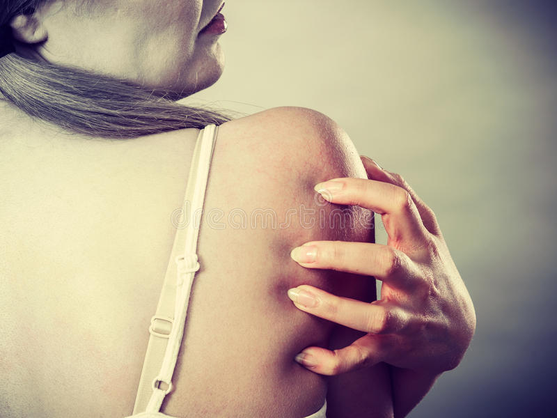 Woman scratching her itchy back with allergy rash. Health problem, skin diseases. Young woman scratching her itchy back with allergy rash royalty free stock images