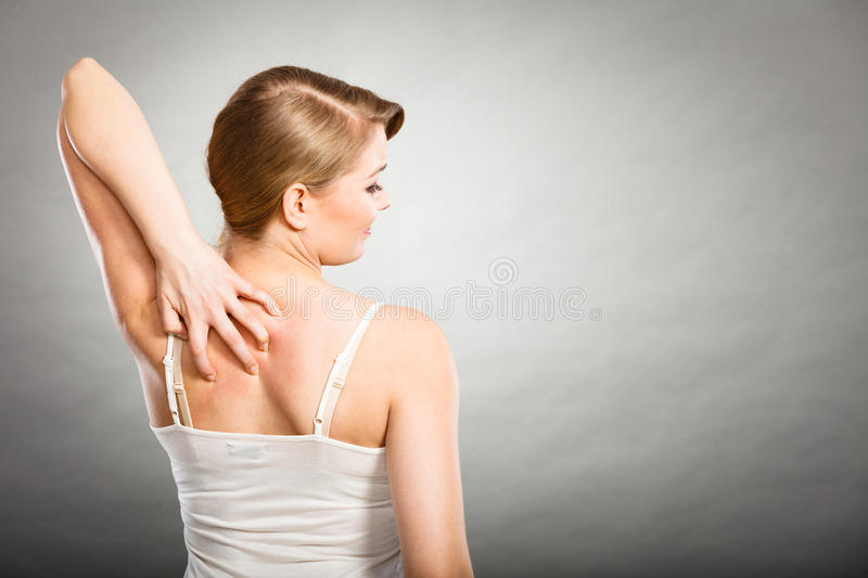 Woman scratching her itchy back with allergy rash. Health problem, skin diseases. Young woman scratching her itchy back with allergy rash stock photography