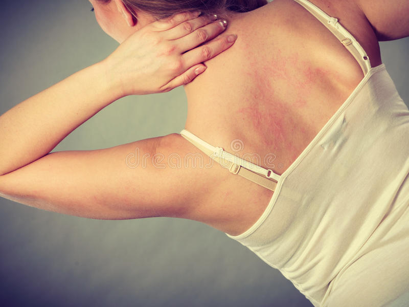 Woman scratching her itchy back with allergy rash. Health problem, skin diseases. Young woman scratching her itchy back with allergy rash stock photo