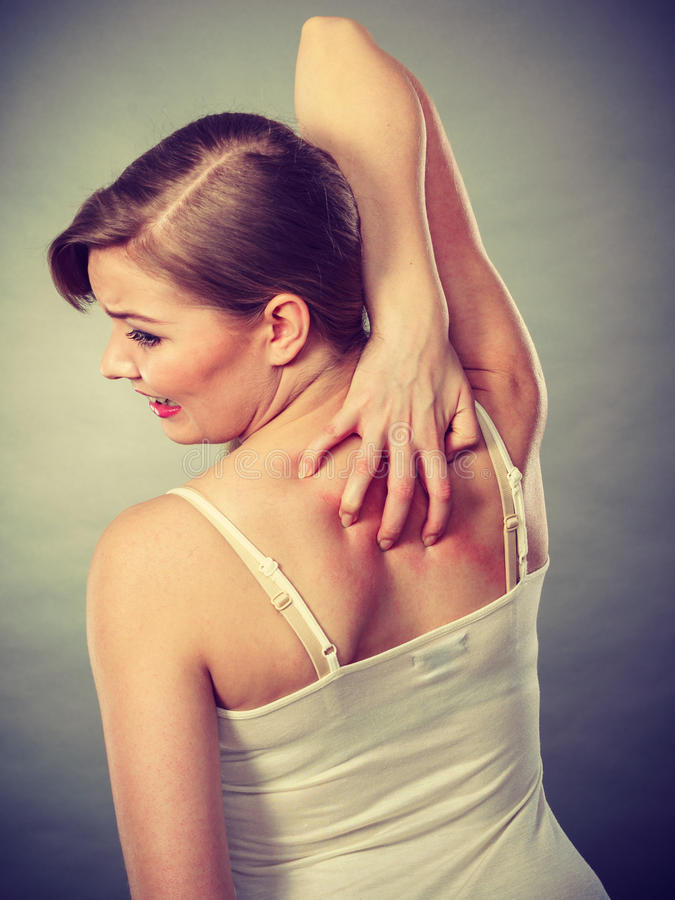 Woman scratching her itchy back with allergy rash. Health problem, skin diseases. Young woman scratching her itchy back with allergy rash stock photos