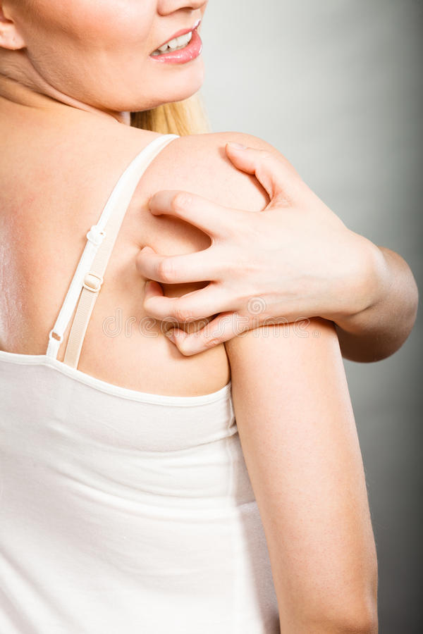 Woman scratching her itchy back with allergy rash. Health problem, skin diseases. Young woman scratching her itchy back with allergy rash royalty free stock photo