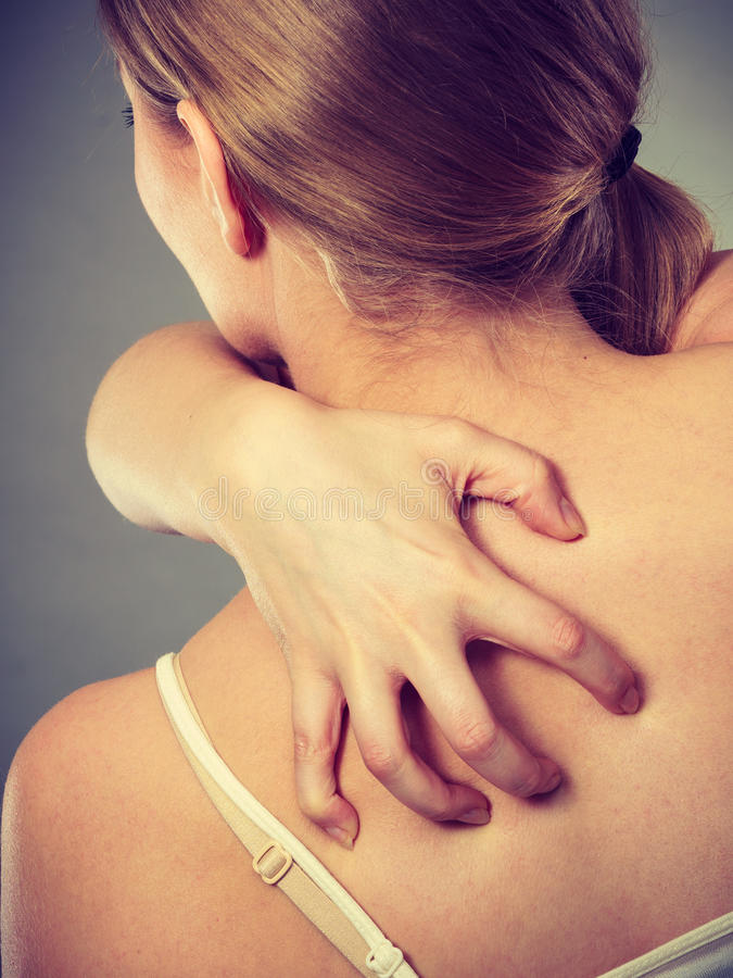 Woman scratching her itchy back with allergy rash. Health problem, skin diseases. Young woman scratching her itchy back with allergy rash royalty free stock photos