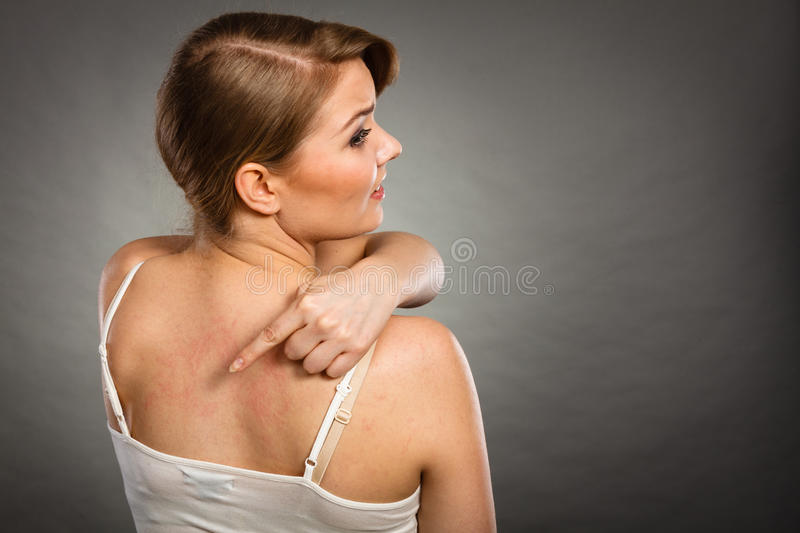 Woman scratching her itchy back with allergy rash. Health problem, skin diseases. Young woman showing her itchy back with allergy rash urticaria symptoms royalty free stock images