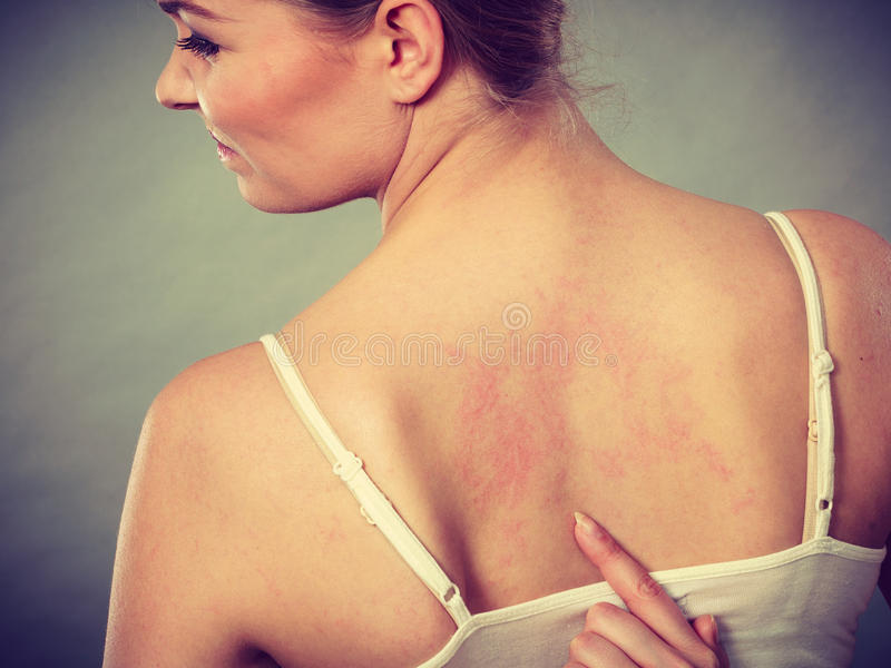 Woman scratching her itchy back with allergy rash. Health problem, skin diseases. Young woman showing her itchy back with allergy rash urticaria symptoms royalty free stock photos