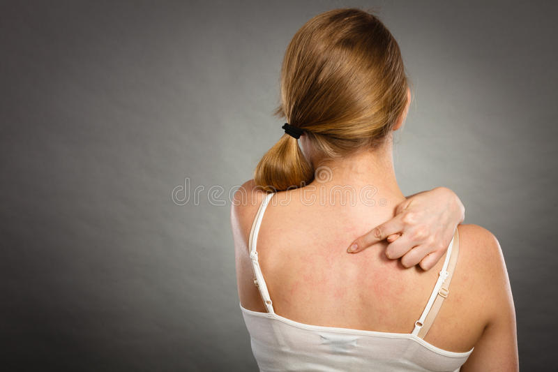 Woman scratching her itchy back with allergy rash. Health problem, skin diseases. Young woman showing her itchy back with allergy rash urticaria symptoms stock images