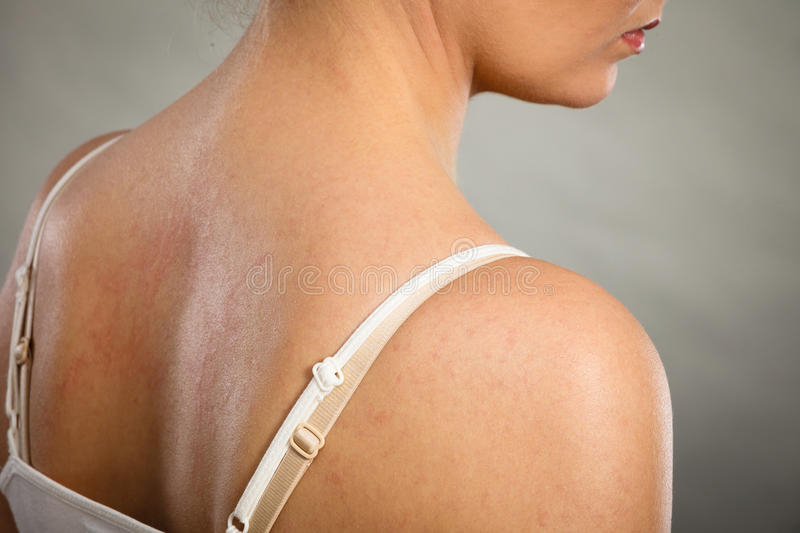 Woman scratching her itchy back with allergy rash. Health problem, skin diseases. Young woman showing her itchy back with allergy rash urticaria symptoms stock photography