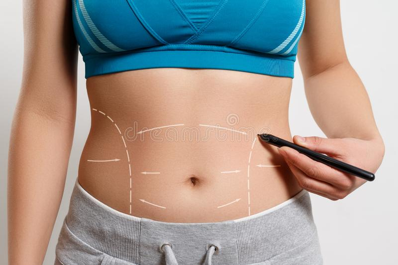 A woman shows a dotted line on her body liposuction zone royalty free stock images