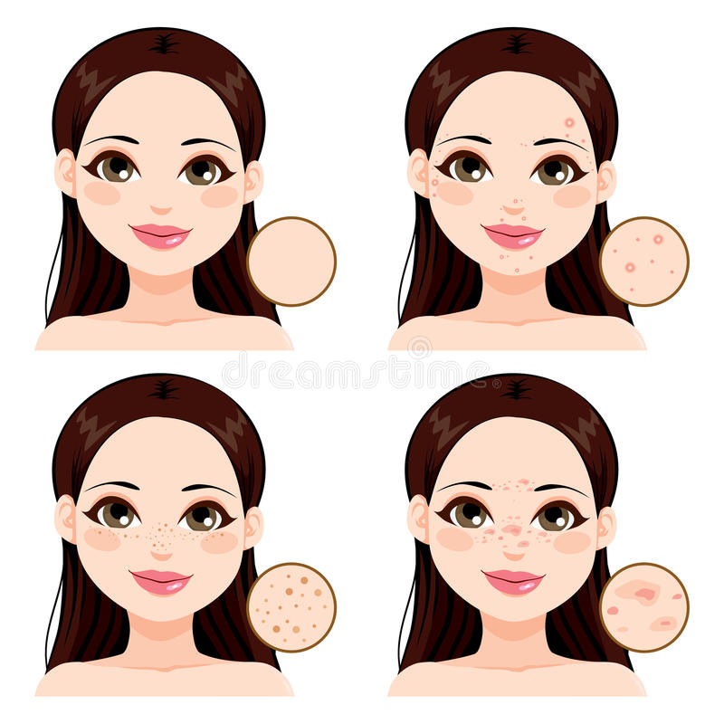 Woman Skin Problems. Young woman showing the effects different skin health problems compared to clean skin and freckles royalty free illustration