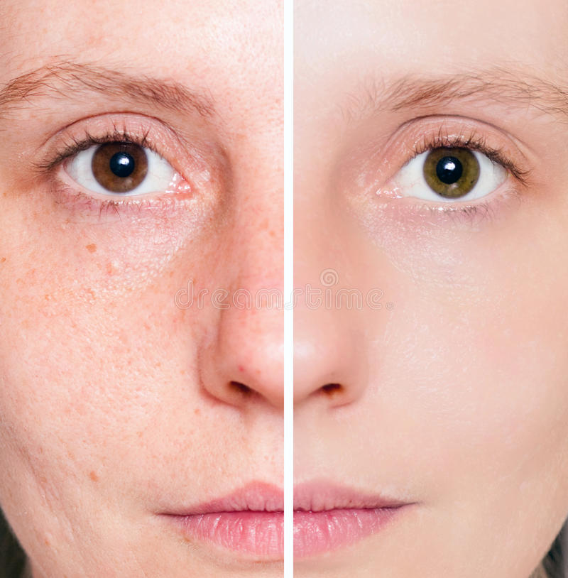 Woman With Spotty Skin With Deep Pores Royalty Free Stock Images