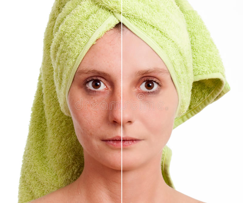 Woman with spotty skin healed royalty free stock photos