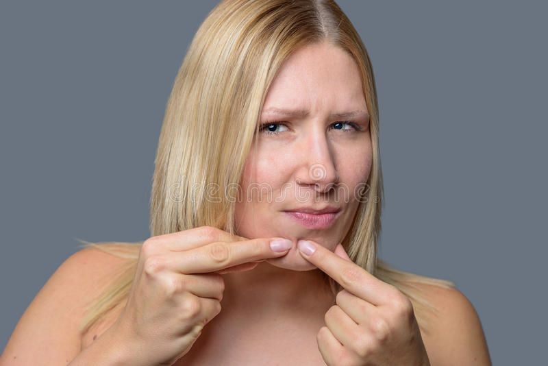 Woman squeezing a pimple on her chin. Woman squeezing a pimple, spot zit or blackhead on her chin with her fingers, close up of her face and hands over grey royalty free stock image