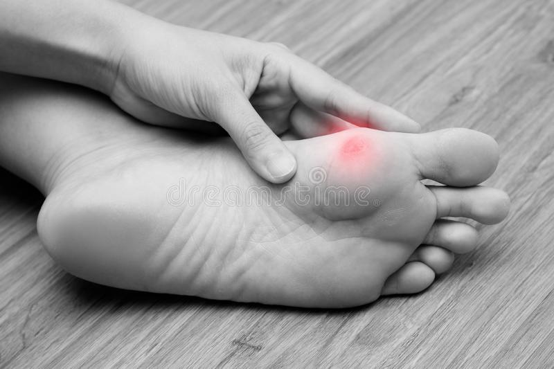 A woman suffering from corn on her foot sole. Black and white tone with red spot on her corn.  stock photo
