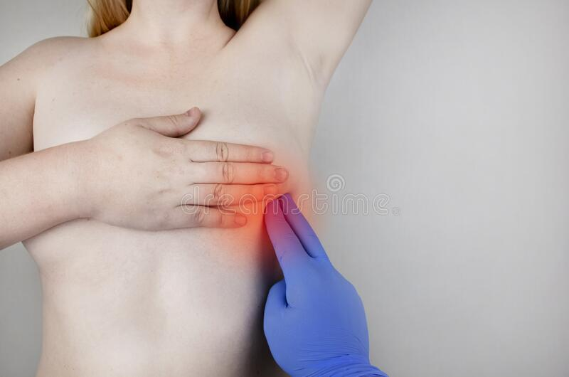 A woman suffers from chest pain. On examination by a gynecologist-mammologist. The concept of the prevention of breast diseases,. Cancer, mastopathy or hormonal stock image
