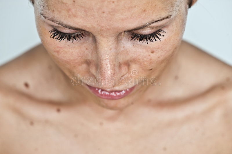 Woman with sunburn. A portrait of a young woman with serious sunburn on her face royalty free stock images