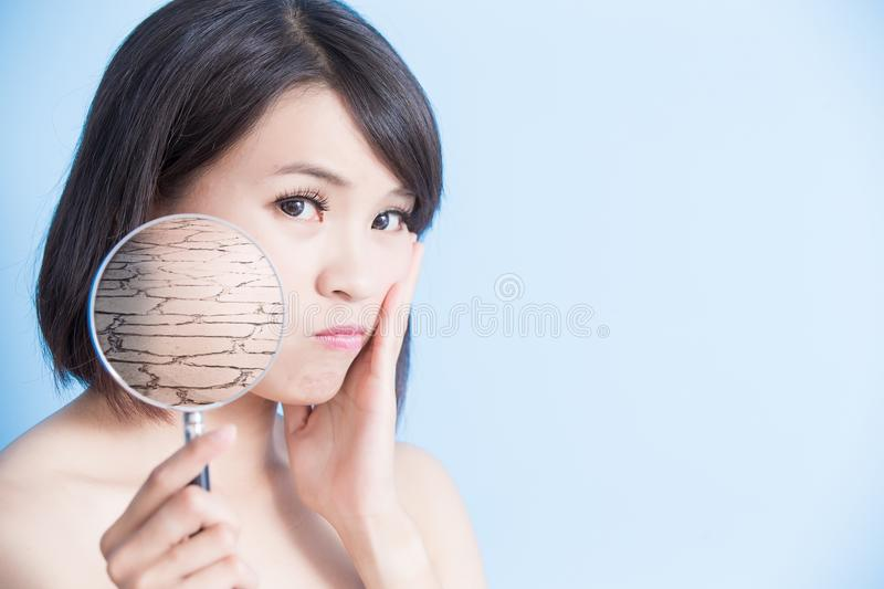 Woman with dry skin. Woman take magnifying with dry skin on the blue background stock photo