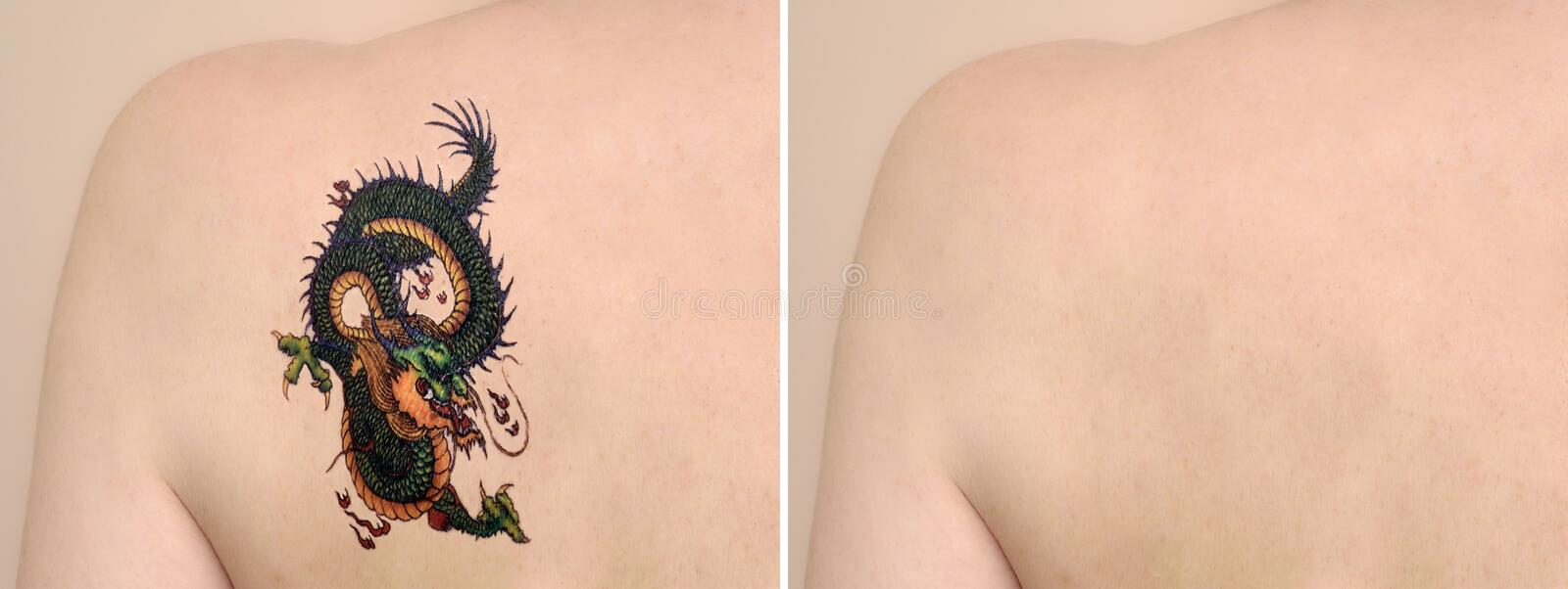 Back of a woman before and after laser tattoo removal treatment. Woman with tattoo on her back. Laser tattoo removal before and after stock photos