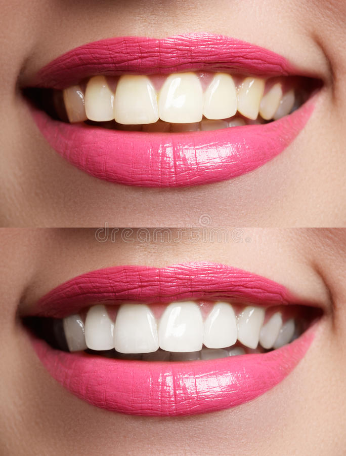 Woman teeth before and after whitening. Macro happy woman`s smile with healthy white teeth, bright pink lips make-up. Stomatology and beauty care. Woman smiling stock photo