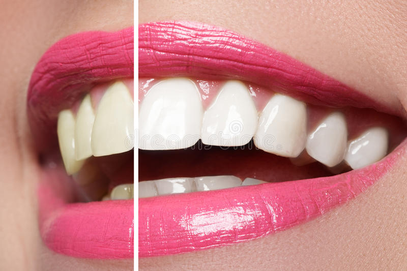 Woman teeth before and after whitening. Macro happy woman`s smile with healthy white teeth, bright pink lips make-up. Stomatology and beauty care. Woman smiling stock image